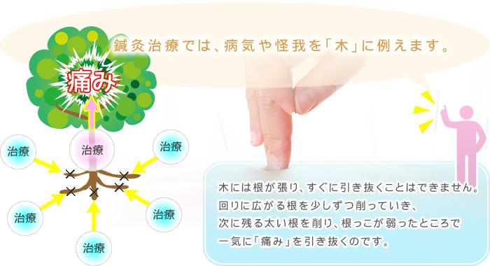 鍼灸治療では病気や怪我を「木」に例えます